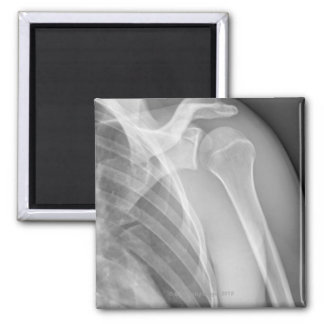 Normal shoulder. X-ray of the healthy left Magnet