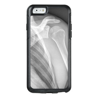 Normal shoulder. X-ray of the healthy left OtterBox iPhone 6/6s Case