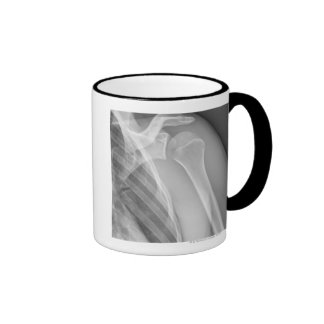 Normal shoulder. X-ray of the healthy left Ringer Coffee Mug