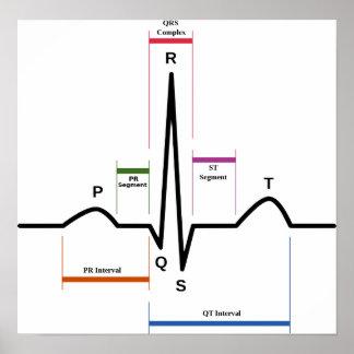 Normal Sinus Rhythm Poster