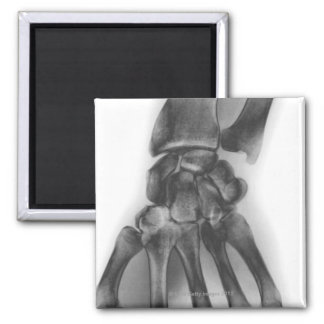 Normal wrist, X-ray 2 Inch Square Magnet