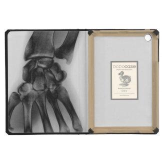 Normal wrist, X-ray iPad Mini Case
