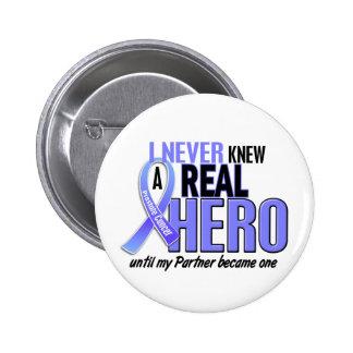Nunca conocía a un cáncer de próstata del socio de pin