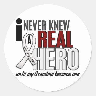 Nunca conocía a un cáncer de pulmón real de la pegatina redonda