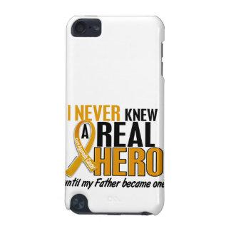 Nunca conocía a un cáncer del apéndice del padre d