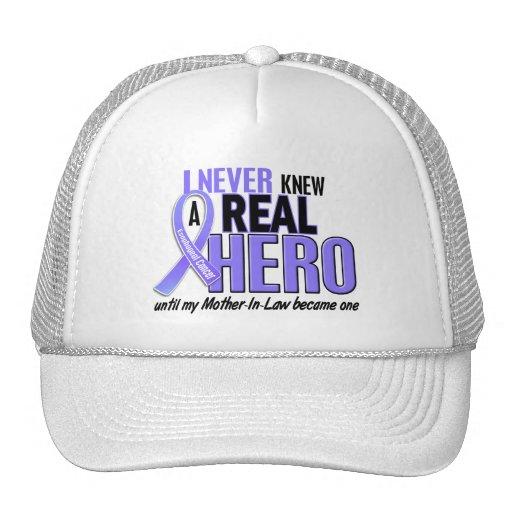 Nunca conocía a un cáncer del esófago de la suegra gorras