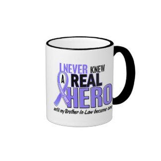 Nunca conocía a un cáncer del esófago del cuñado d taza de café