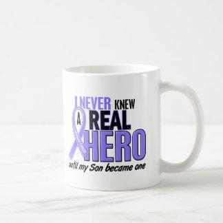 Nunca conocía a un cáncer del esófago del hijo del taza de café