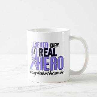 Nunca conocía a un cáncer del esófago del marido taza de café