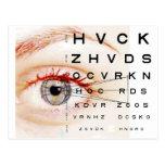 oftalmología postal