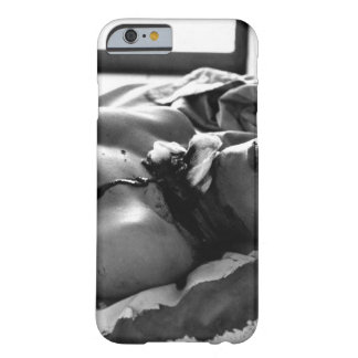 One of 48 persons wounded by a Viet Cong explosion Barely There iPhone 6 Case