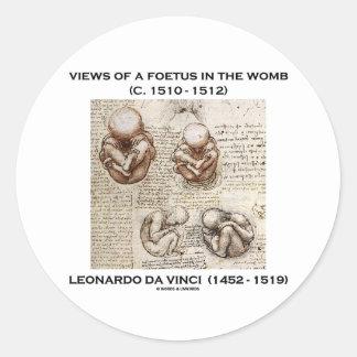 Opiniones un feto en la matriz (Leonardo da Vinci) Pegatina Redonda