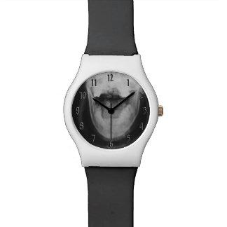 Original radiografiada 3 reloj