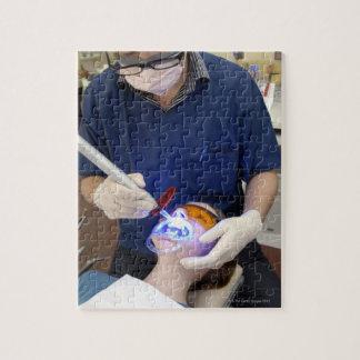 Orthodontist using UV light to set the concrete Puzzle