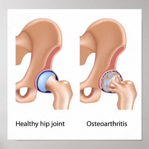 Osteoartritis del poster de la junta de cadera