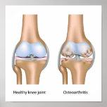 Osteoartritis del poster de la junta de rodilla