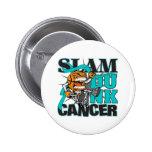 Ovarian Cancer - Slam Dunk Cancer Pinback Buttons