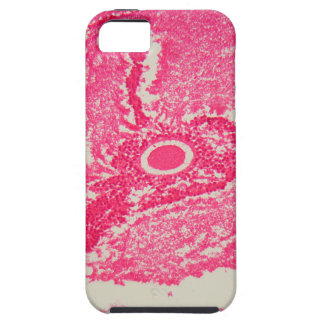 Ovary cells under the microscope. iPhone 5 case