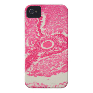 Ovary cells under the microscope. iPhone 4 Case-Mate case