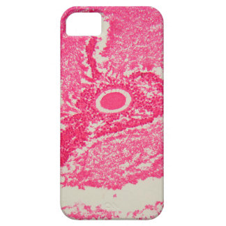 Ovary cells under the microscope. iPhone SE/5/5s case