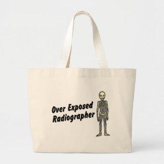 Over Exposed Radiographer Jumbo Tote Bag