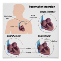 Pacemaker insertion surgery Poster
