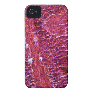 Pancreas Cells under the Microscope iPhone 4 Cover