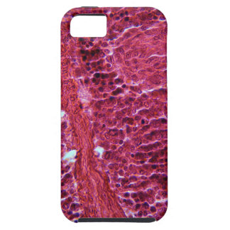 Pancreas Cells under the Microscope iPhone SE/5/5s Case