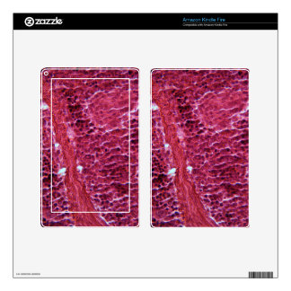 Pancreas Cells under the Microscope Kindle Fire Skin