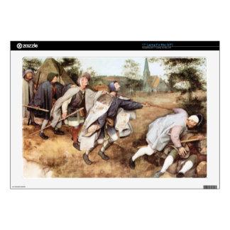 Parabal of the blind men by Pieter Bruegel Laptop Decals