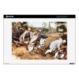 Parabal of the blind men by Pieter Bruegel Skin For Laptop