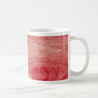 Parasite Trichinella spiralis Coffee Mug