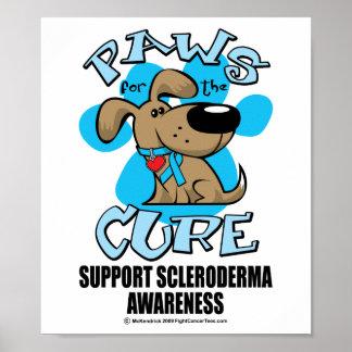 Patas para el escleroderma de la curación impresiones