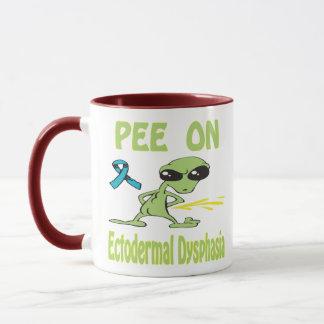 Pee On Ectodermal Dysphasia Mug