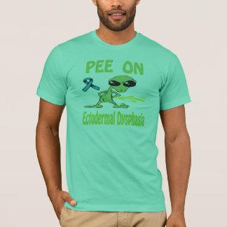 Pee On Ectodermal Dysphasia Shirt