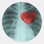 Pegatina del caso del corazón de la radiografía