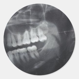 Pegatinas del mandíbula pegatina redonda