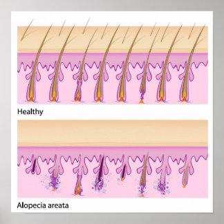 Pelo normal y poster del areata de la alopecia