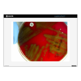 Penumonia Bacteria Skins For Laptops