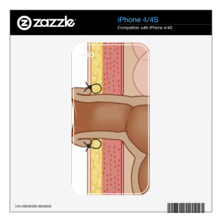 Permanent Colostomy iPhone 4S Skins