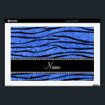"Personalize name blue glitter zebra stripes 17&quot; laptop skin<br><div class=""desc"">Modern blue glitter zebra stripes pattern (animal print) (not real glitter) with a black diamonds ribbon stripe (not real diamonds) personalized with your name gifts or monogram gifts or your initials or you can add your own personal text. Glitter zebra gift ideas for girls,  teenagers and women.</div>"