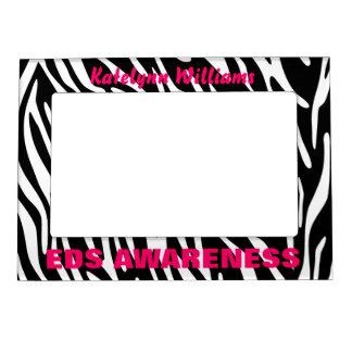 Personalized EDS Zebra Stripe Magnet Photo Frame