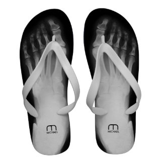 Personalized Human Foot X-Ray Sandals