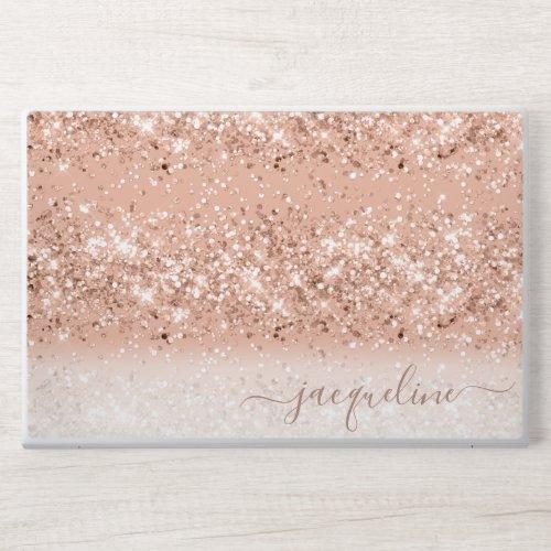 Personalized Rose Gold Glitter HP Laptop Skin