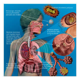 Pertussis (Whooping cough) poster