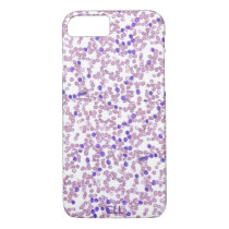 Phone case(many models)-Chronic Lymphomic Leukemia iPhone 7 Case