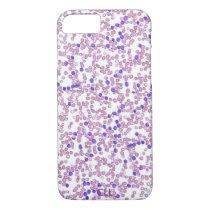 Phone case(many models)-Chronic Lymphomic Leukemia iPhone 8/7 Case