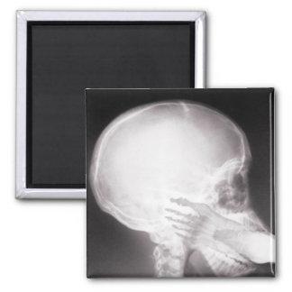 Pie en radiografía de la boca imán cuadrado