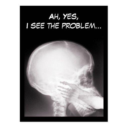 Pie en radiografía de la boca postal