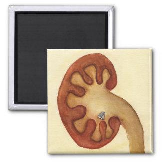 piedra de riñón imán cuadrado